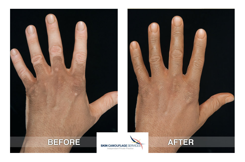 Skin Camouflage for Vitiligo, progressive loss of pigment to the hands.