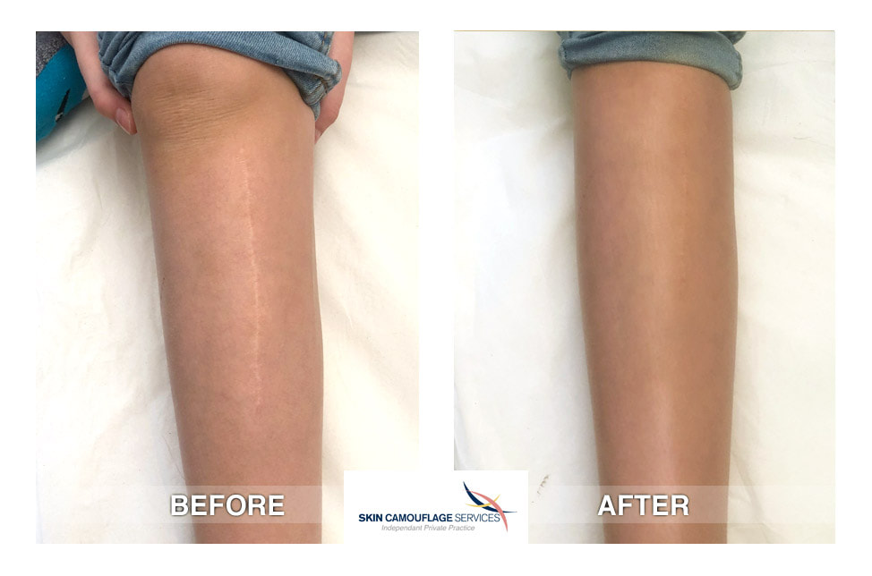 Skin Camouflage for incisional scar over the anteromedial section of the right leg.