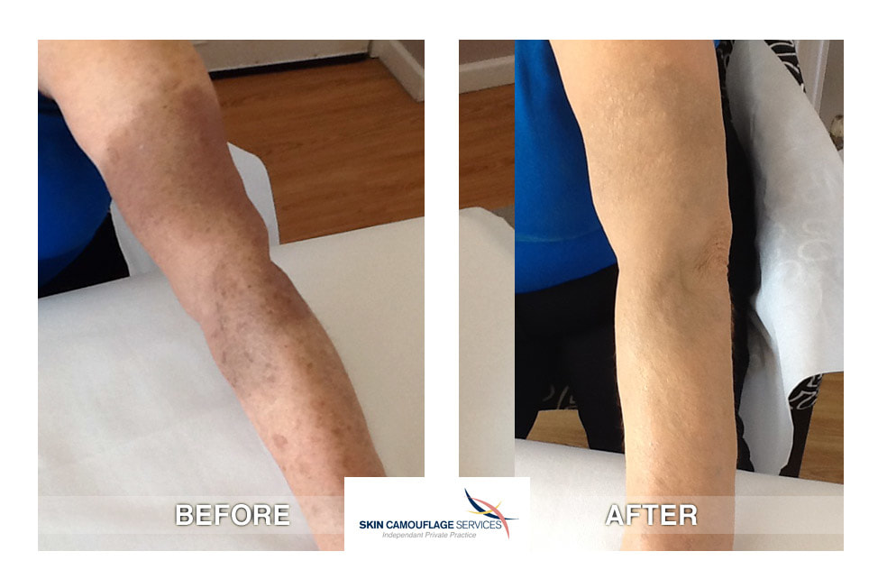 Skin camouflage for hyperpigmentation and trauma discoloration left arm