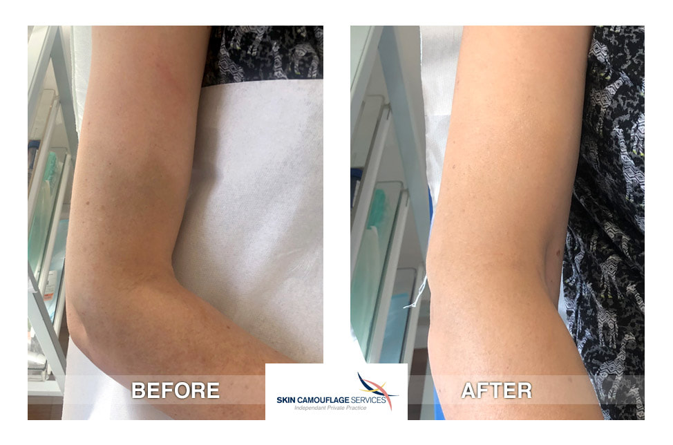 Skin camouflage application. An extensive area of altered pigmentation to the right arm.