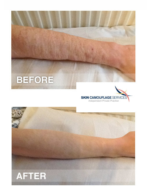 Skin camouflage for self- harm scarring to the forearm