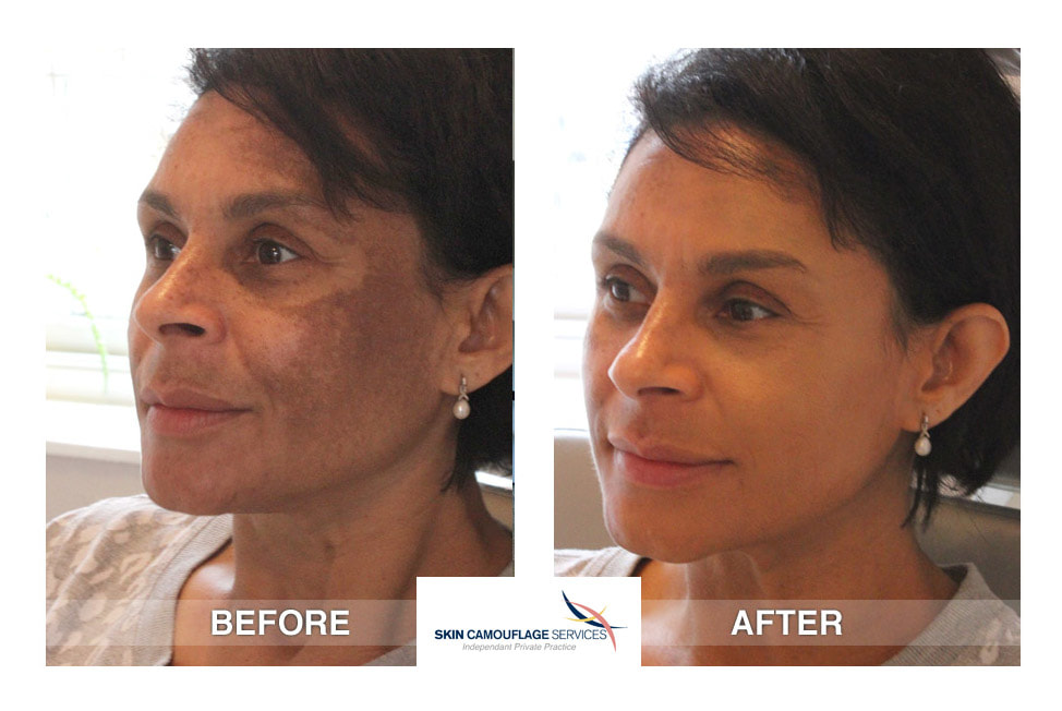 Skin camouflage treatment for melasma