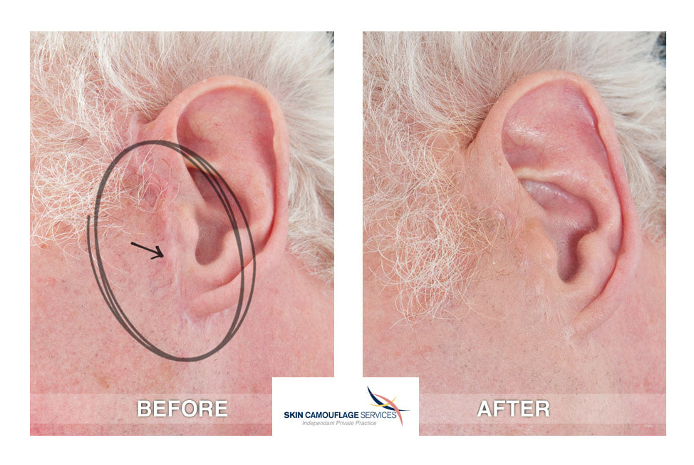 Patient request for skin camouflage for minor scarring-medial tragus area of the left ear