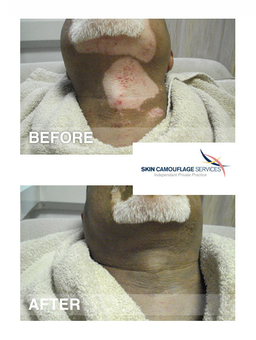 Skin camouflage treatment for vitiligo on the neck