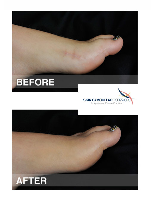 Skin camouflage for suture line scarring on the medial aspect of the left great toe