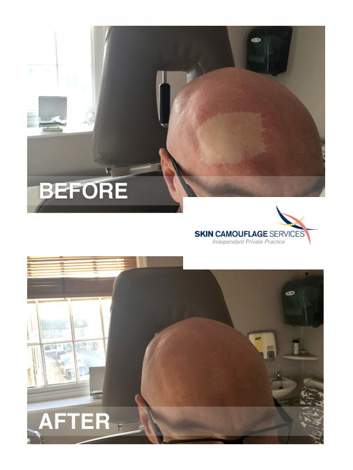 Skin camouflage for a skin graft to the frontal region of the scalp