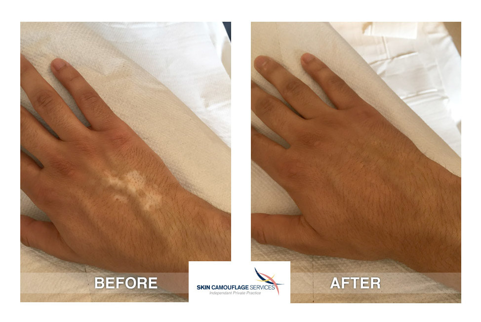 Skin camouflage for hypopigmented scarring on the dorsal surface of the right hand