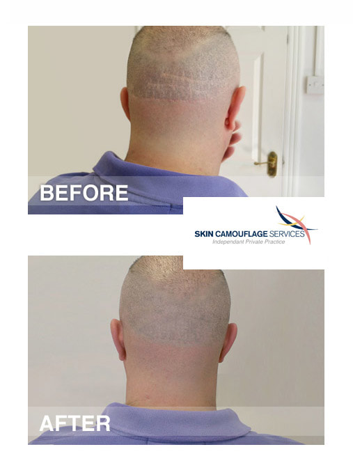 Skin camouflage for linear scarring to the occipital region of the scalp