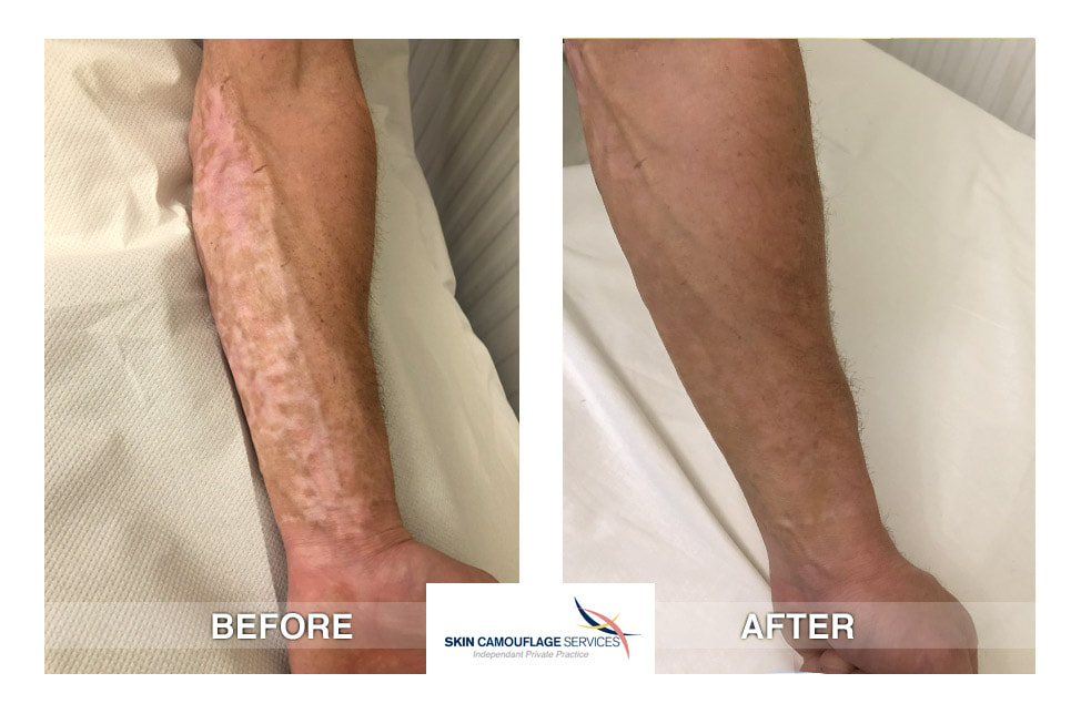 Hypopigmentation and mottling to both the lateral and posterior aspects of the left forearm which extends to the dorsum of the hand.