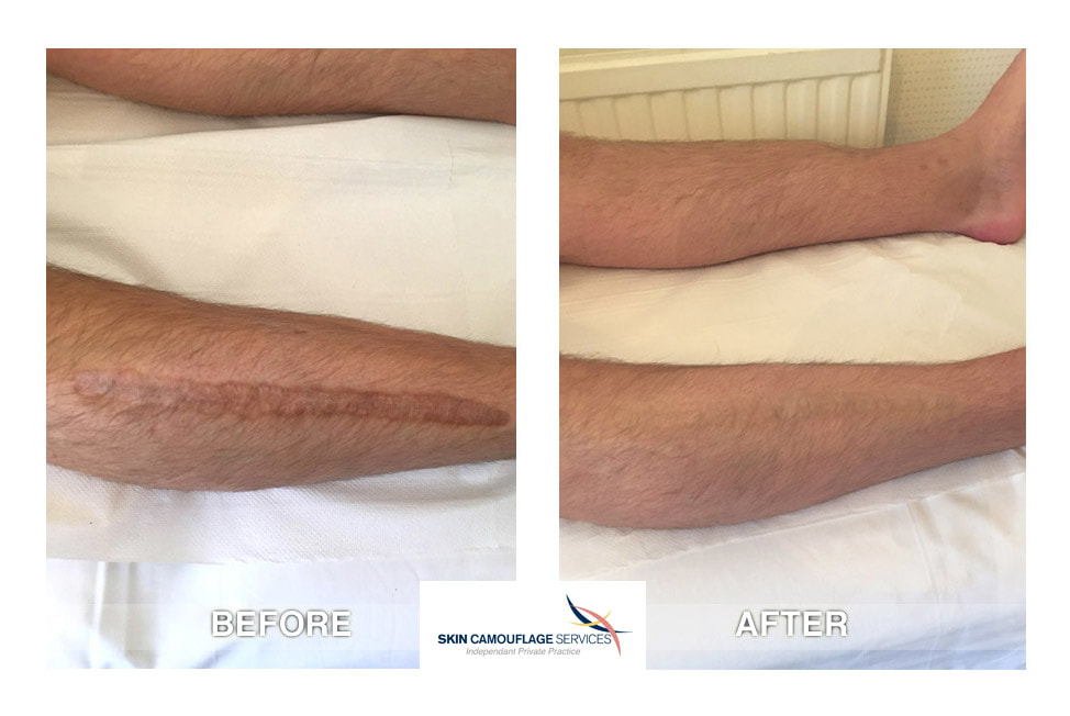 Skin camouflage for scarring on the anterior lateral aspect of the right lower leg