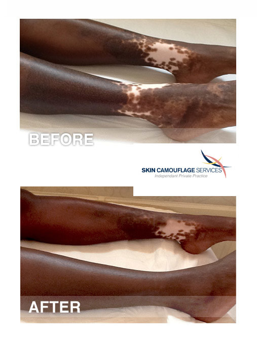 Skin camouflage trauma hypopigmentation on the lower legs