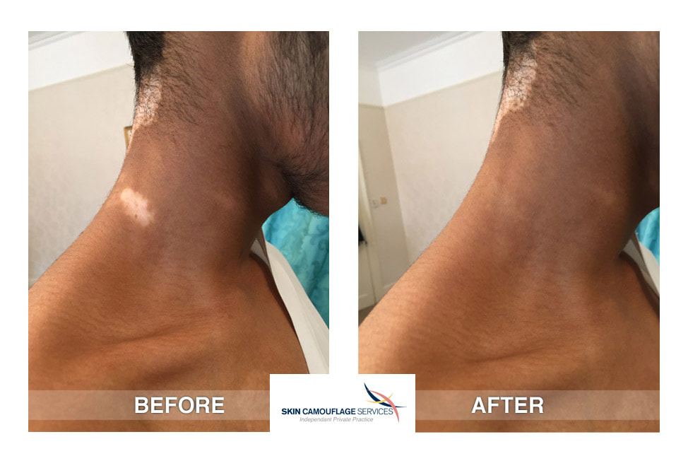 During the skin camouflage treatment for segmental vitiligo on the neck