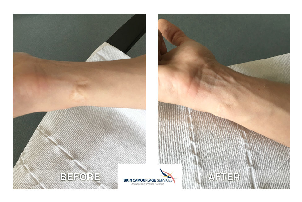 Skin camouflage for scarring on the inner aspect of the right wrist